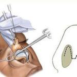 عمل باز بینی